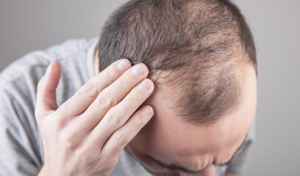 Hombre sufriendo alopecia